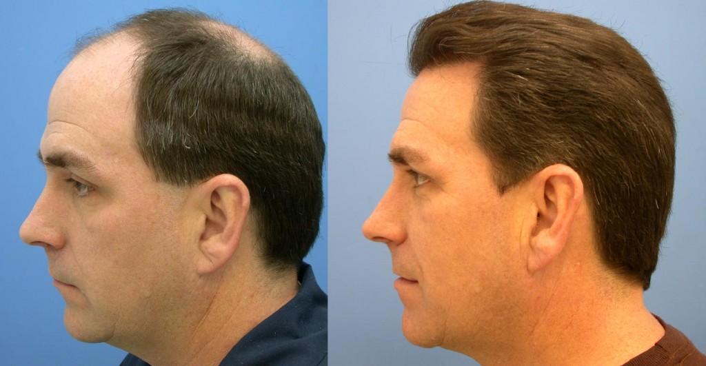 Trapianto di capelli: costi, tecnica e risultati