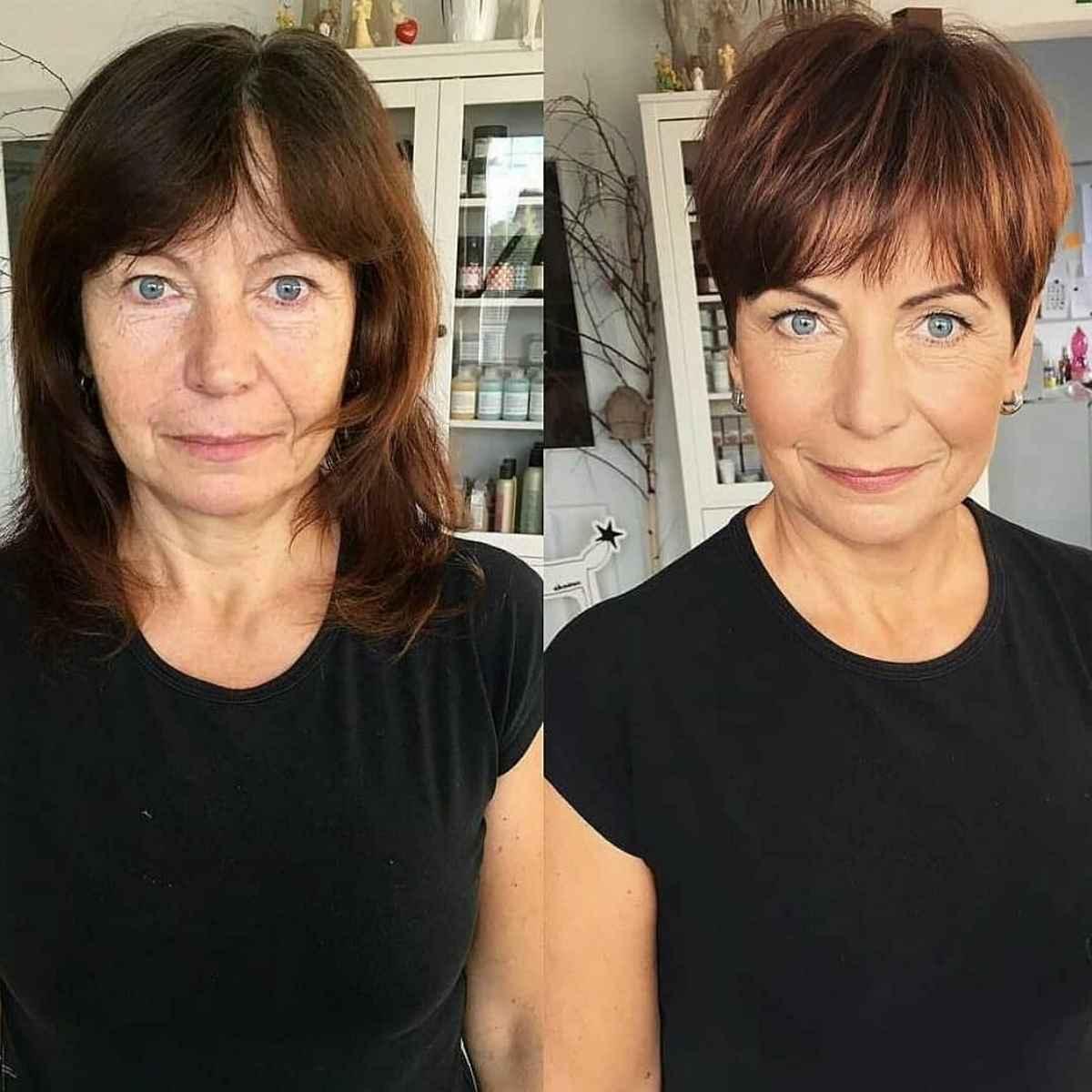 Caduta eccessiva dei capelli nelle donne