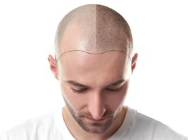 trapianto di capelli