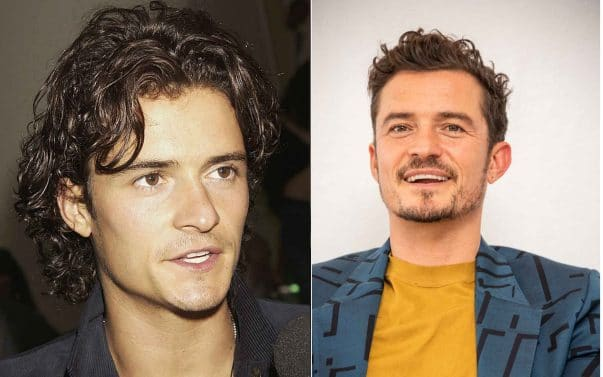 Orlando Bloom prima e dopo