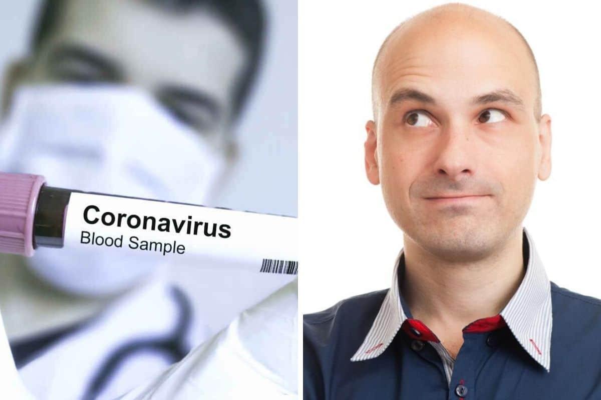 coronavirus-calvizie