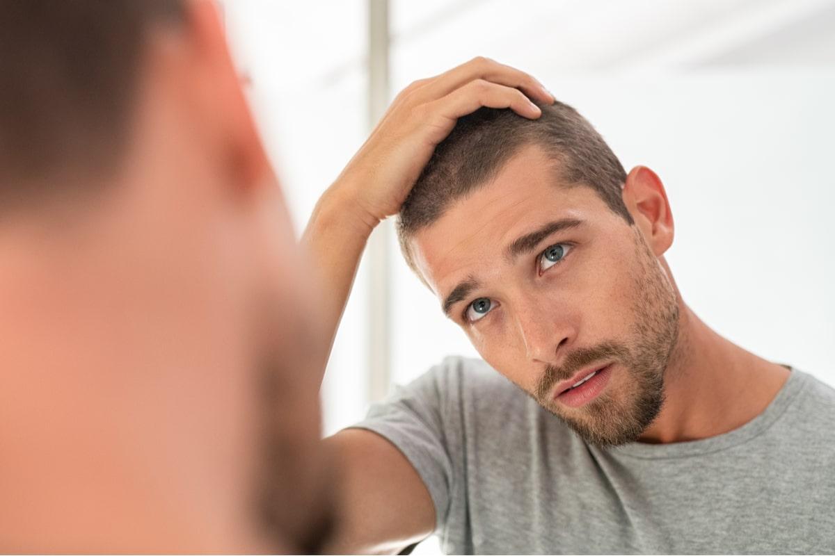 perdita-capelli-uomo