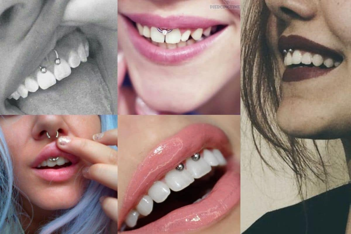 smile piercing